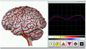 Brain and Graph